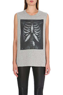 DIESEL Printed cotton vest top