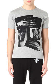 THE KOOPLES Body Radiography t-shirt
